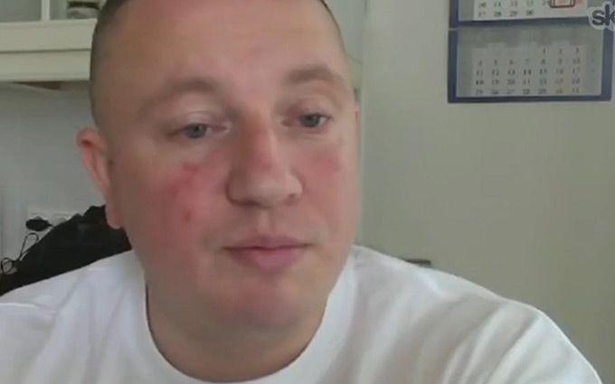 Росія зрадила зрадника: мережа продовжує кипіти через вбивство Жиліна