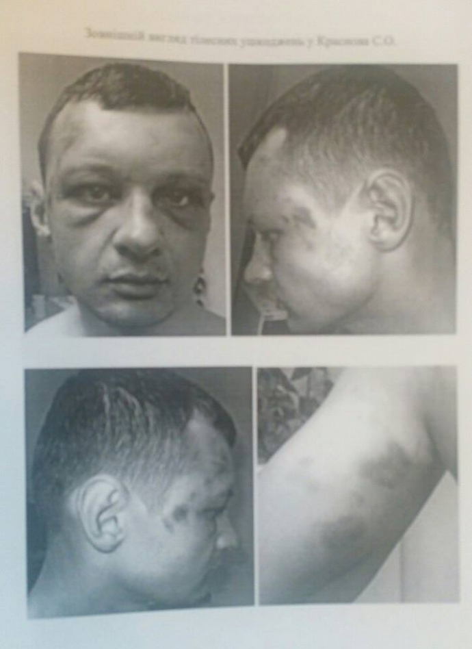 Скандальный нардеп выложил в сеть фото избитого лидера