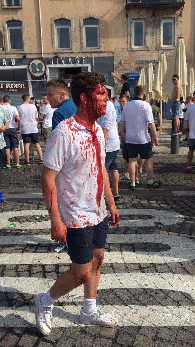 Российские варвары устроили побоище на стадионе Евро-2016: появилось шокирующее видео (2)