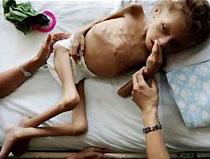 Миллионы детей в мире хронически недоедают