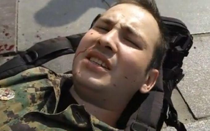 Напад з ножем на бійця ОУН: у Авакова видали несподівану версію