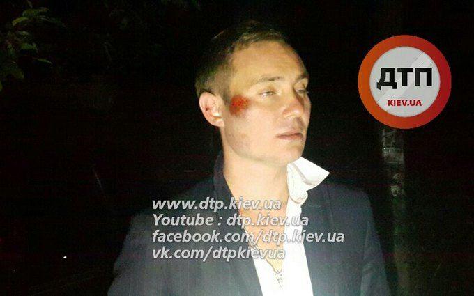 У Києві сталася п'яна ДТП: з'явилися фото і відео з водієм-скандалістом