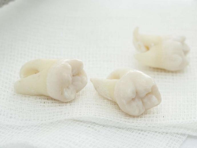 Нужно ли удалять зуб, если он постоянно болит? (1)