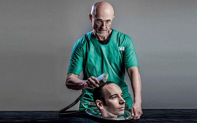 В Китае провели первую операцию по пересадке головы