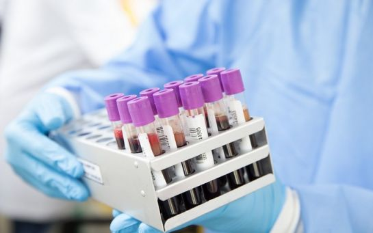 Кількість хворих на коронавірус в Україні різко зросла - офіційні дані на 31 травня