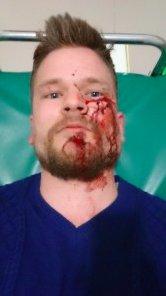 Из-за избиения иностранных журналистов в Чечне разгорается скандал: опубликованы фото (2)
