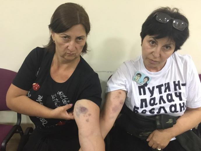 У Росії розгорається скандал з нападом на журналісток: з'явилося фото (2)